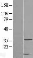 NBL1-08691 - CAPZA2 Lysate