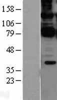 NBL1-08695 - CARD11 Lysate