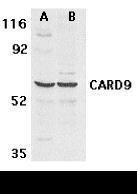 NBP1-76679 - CARD9