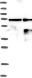NBP1-88189 - ALX1 / CART1