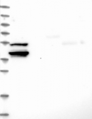 NBP1-83810 - CASC1 / LAS1