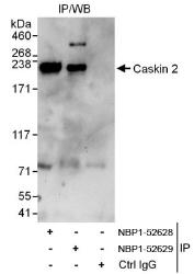 NBP1-52628 - Caskin-2