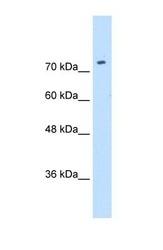 NBP1-59857 - SLC7A1 / CAT1
