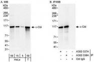 NBP1-28758 - CBL / RNF55