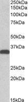 NB300-858 - Carbonyl reductase 3