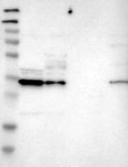 NBP1-87065 - Carbonyl reductase 3