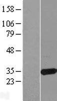 NBL1-08742 - CBR3 Lysate