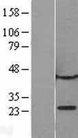 NBL1-08746 - CBX1 Lysate