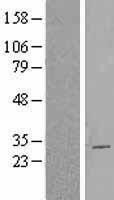 NBL1-08747 - CBX2 Lysate
