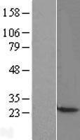 NBL1-08748 - CBX3 Lysate