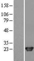 NBL1-08749 - CBX3 Lysate
