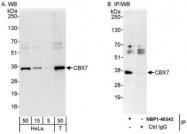 NBP1-40343 - CBX7