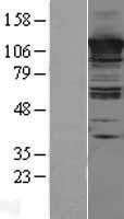 NBL1-08754 - CC2D1A Lysate