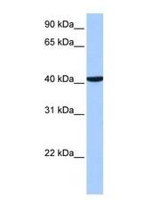 NBP1-52841 - CC2D1B