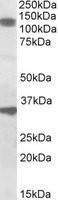 NBP1-46158 - CCAR1