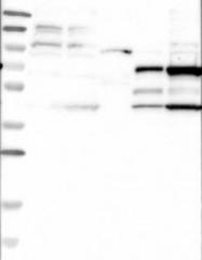 NBP1-83317 - CCBL1