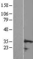 NBL1-08762 - CCDC106 Lysate