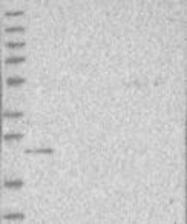 NBP1-86568 - CCDC115