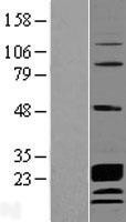 NBL1-08769 - CCDC115 Lysate