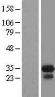 NBL1-08770 - CCDC117 Lysate