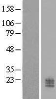 NBL1-08775 - CCDC126 Lysate