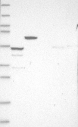 NBP1-93860 - CCDC17