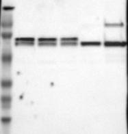 NBP1-84331 - CCDC22