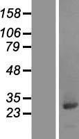 NBL1-08788 - CCDC25 Lysate