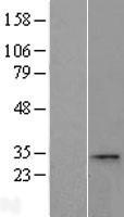 NBL1-08790 - CCDC28A Lysate