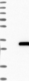 NBP1-81222 - CCDC28B