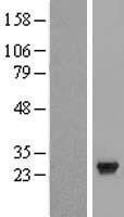 NBL1-08791 - CCDC28B Lysate