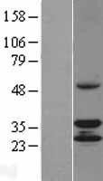 NBL1-08796 - CCDC44 Lysate