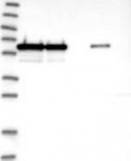 NBP1-93717 - CCDC47