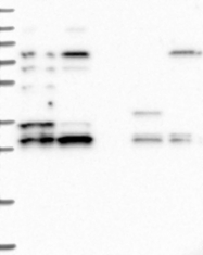 NBP1-88158 - HAUS1 / CCDC5
