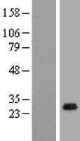 NBL1-08800 - CCDC5 Lysate