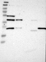 NBP1-82302 - CCDC51