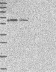 NBP1-82696 - CCDC60