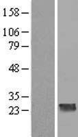NBL1-08816 - CCDC70 Lysate
