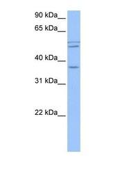 NBP1-55424 - CCDC78