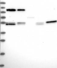 NBP1-85085 - CCDC8