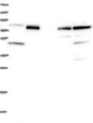 NBP1-91763 - CCDC81