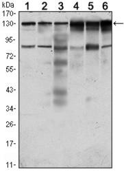 NBP1-51633 - PTK7 / CCK4