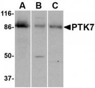 NBP1-76819 - PTK7 / CCK4