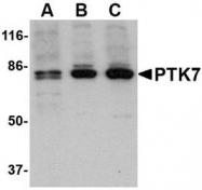 NBP1-76820 - PTK7 / CCK4