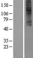 NBL1-08839 - CCKAR Lysate