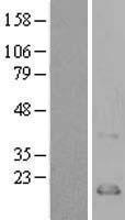 NBL1-08851 - CCL21 Lysate