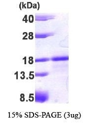 NBP1-37092 - 6CKine / CCL21