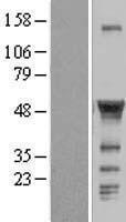 NBL1-08862 - CCM2 Lysate