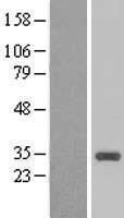 NBL1-08867 - CCNB1IP1 Lysate
