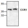 NBP1-45469 - CD191 / CCR1